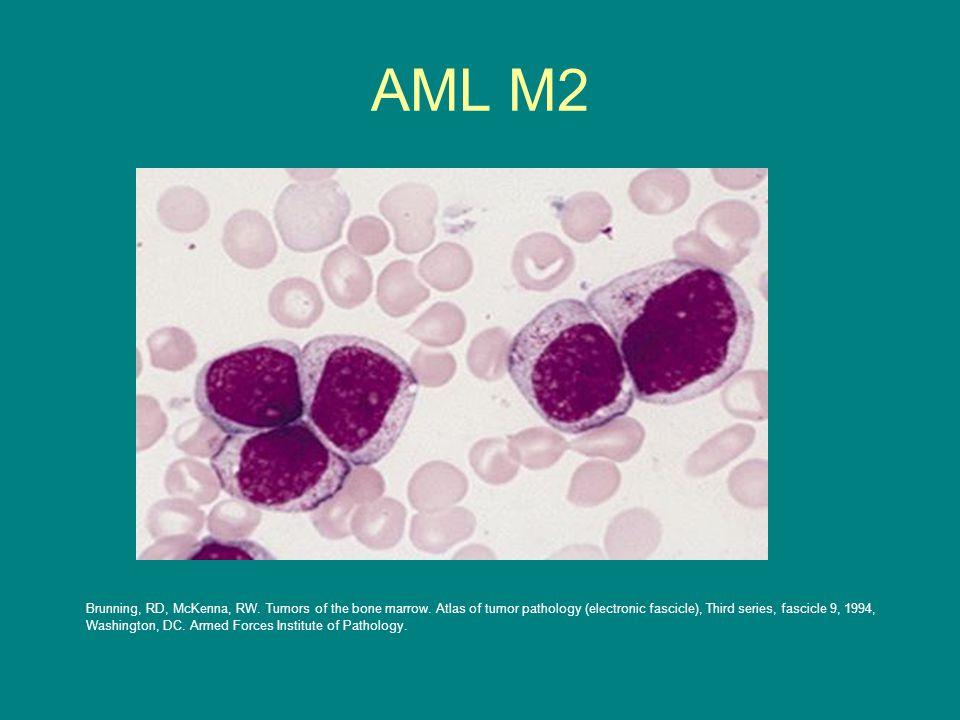 AML M2 Brunning, RD, McKenna, RW. Tumors of the bone marrow. Atlas of tumor pathology (electronic fascicle), Third series, fascicle 9, 1994, Washingto