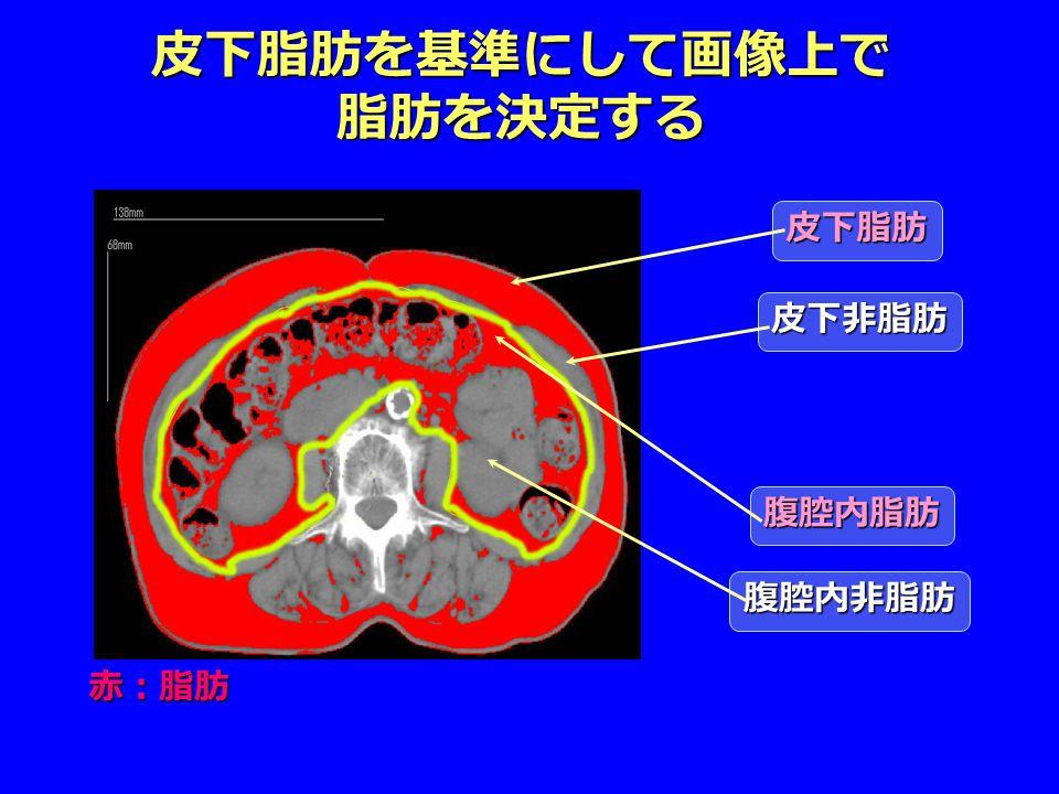 皮下脂肪を基準にして画像上で 脂肪を決定する 赤:脂肪 皮下脂肪 皮下非脂肪 腹腔内脂肪 腹腔内非脂肪