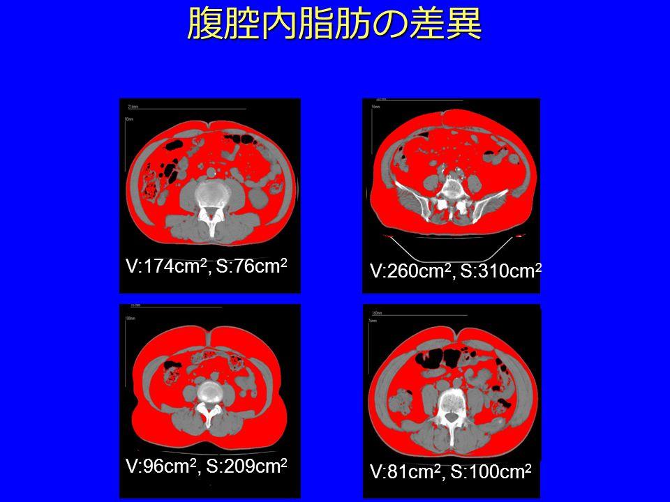 腹腔内脂肪の差異 V:174cm 2, S:76cm 2 V:260cm 2, S:310cm 2 V:96cm 2, S:209cm 2 V:81cm 2, S:100cm 2