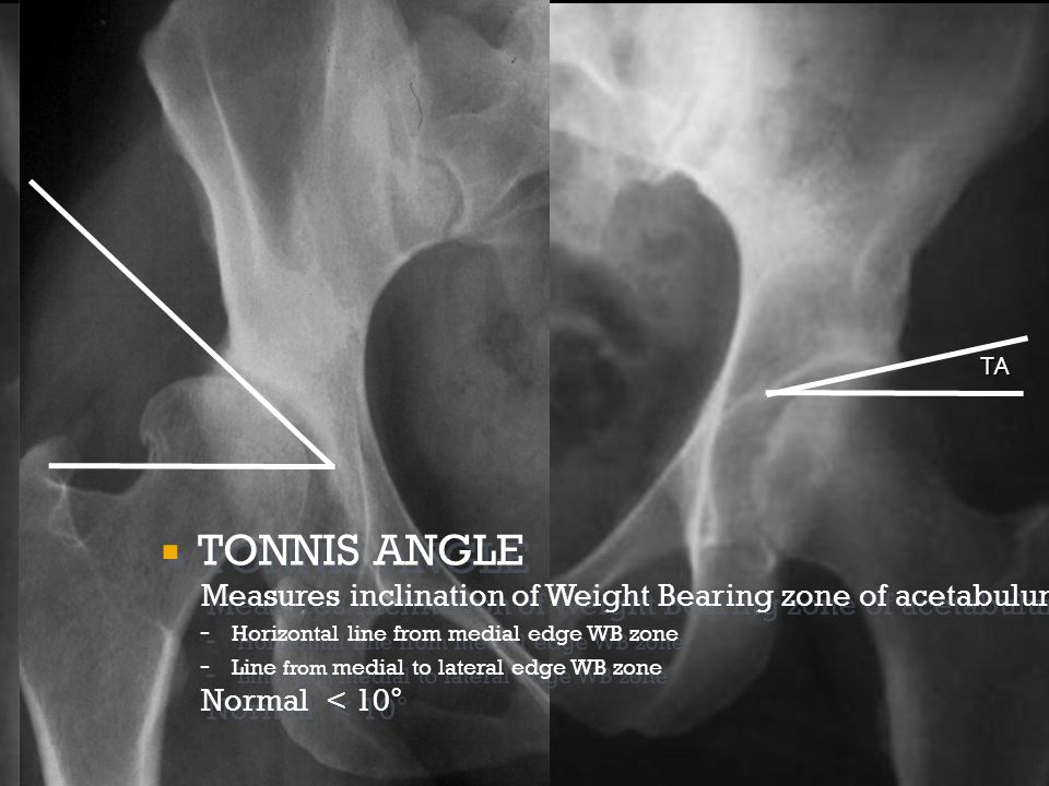  TONNIS ANGLE Measures inclination of Weight Bearing zone of acetabulum - Horizontal line from medial edge WB zone - Line from medial to lateral edge WB zone Normal < 10 °  TONNIS ANGLE Measures inclination of Weight Bearing zone of acetabulum - Horizontal line from medial edge WB zone - Line from medial to lateral edge WB zone Normal < 10 ° TA