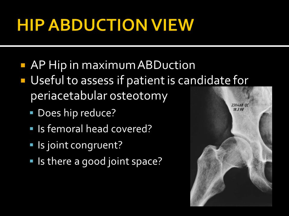  AP Hip in maximum ABDuction  Useful to assess if patient is candidate for periacetabular osteotomy  Does hip reduce.