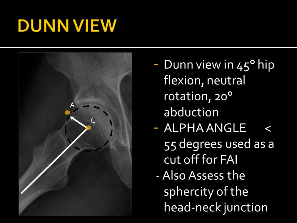 - Dunn view in 45° hip flexion, neutral rotation, 20° abduction - ALPHA ANGLE < 55 degrees used as a cut off for FAI - Also Assess the sphercity of the head-neck junctionA C
