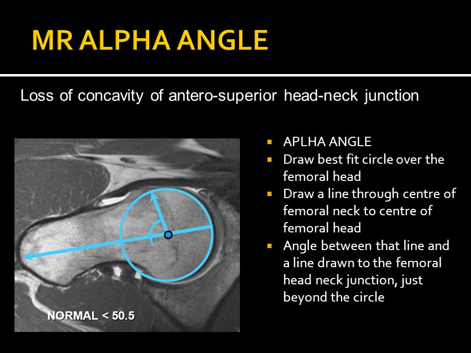  APLHA ANGLE  Draw best fit circle over the femoral head  Draw a line through centre of femoral neck to centre of femoral head  Angle between that line and a line drawn to the femoral head neck junction, just beyond the circle Loss of concavity of antero-superior head-neck junction NORMAL < 50.5