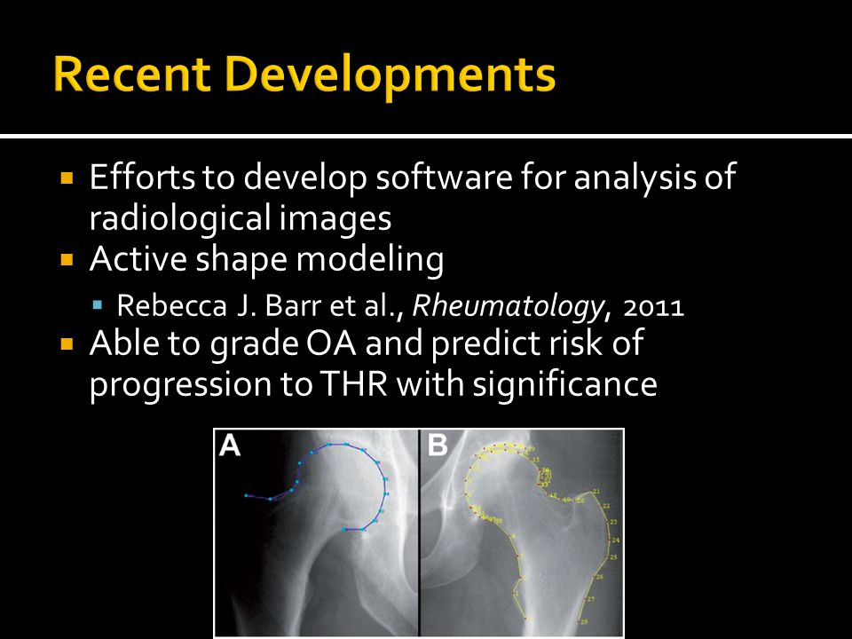  Efforts to develop software for analysis of radiological images  Active shape modeling  Rebecca J.