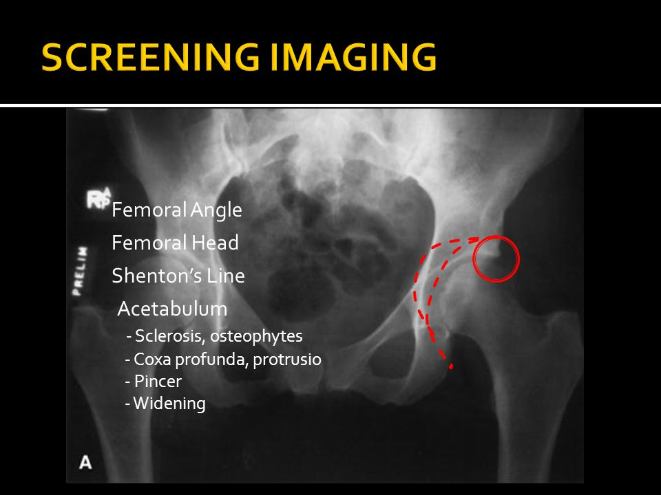 Femoral Angle Femoral Head Shenton's Line Acetabulum - Sclerosis, osteophytes - Coxa profunda, protrusio - Pincer - Widening