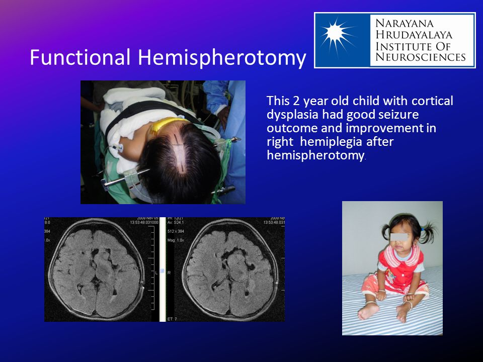 Functional Hemispherotomy This 2 year old child with cortical dysplasia had good seizure outcome and improvement in right hemiplegia after hemispherot