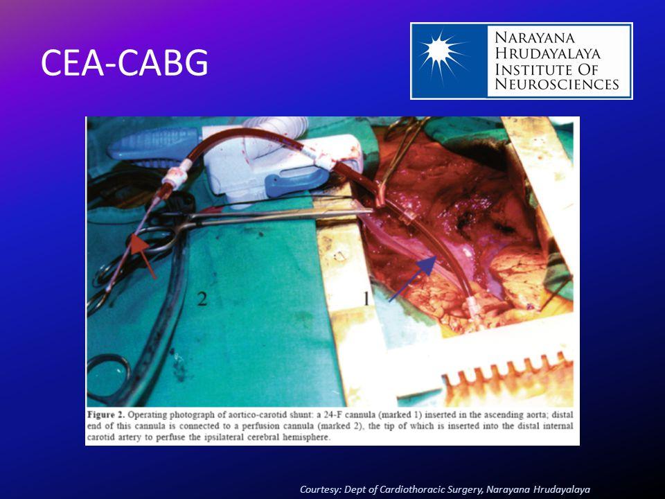 CEA-CABG Courtesy: Dept of Cardiothoracic Surgery, Narayana Hrudayalaya