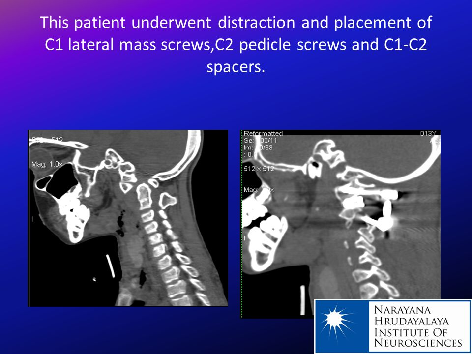 Placement of condylar screws for occipito-cervical fusion in patient with rheumatoid arthritis and atlanto- occipital and atlanto-axial dislocation.