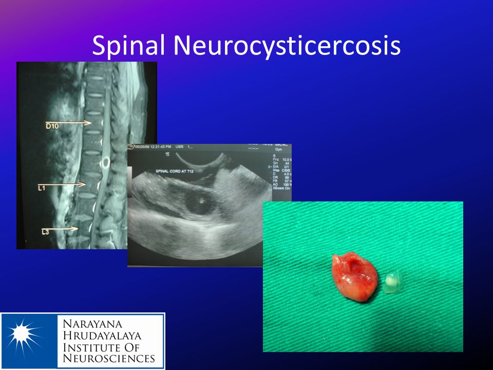 Spinal Neurocysticercosis