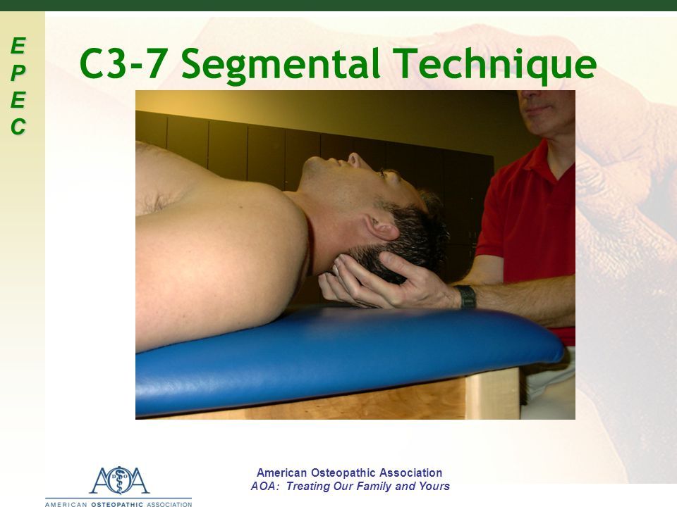 EPECEPECEPECEPEC American Osteopathic Association AOA: Treating Our Family and Yours C3-7 Segmental Technique