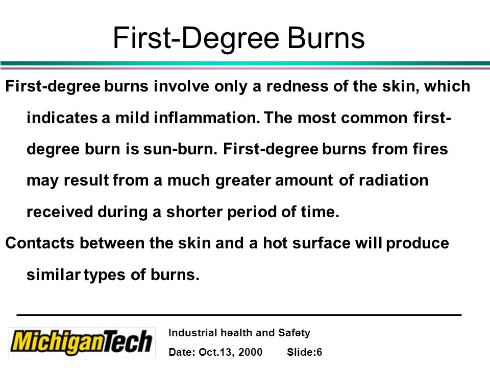 Industrial health and Safety Date: Oct.13, 2000 Slide:7 First-Degree Burns