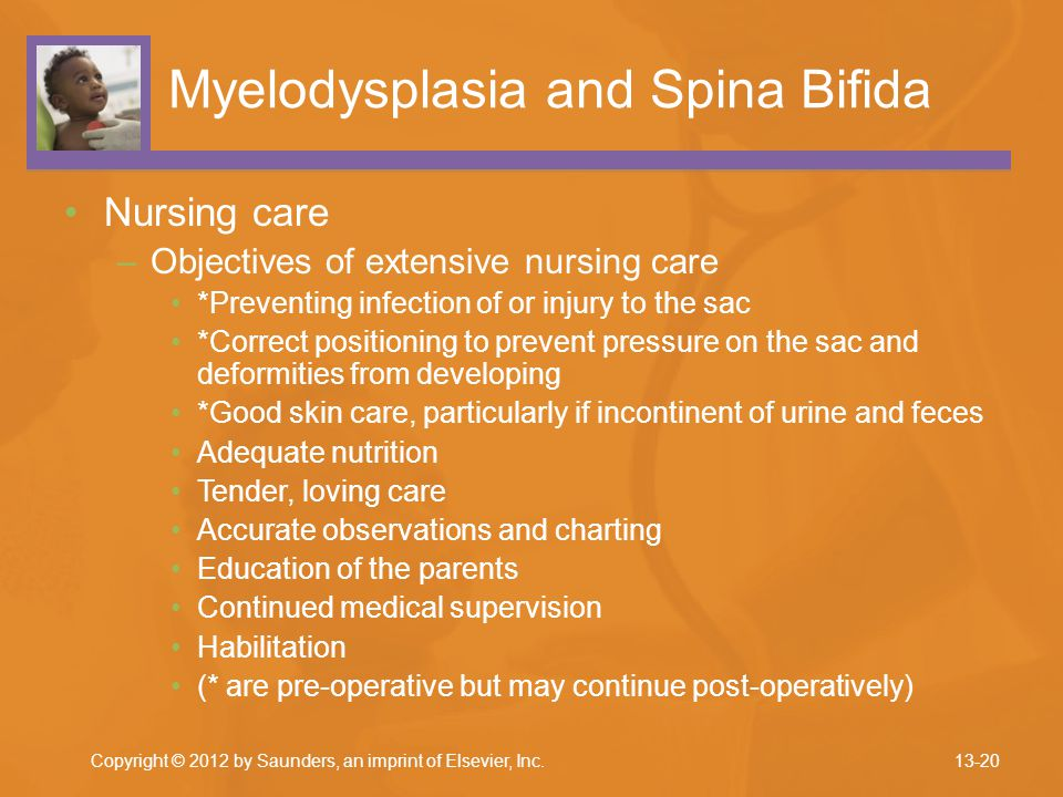 Myelodysplasia and Spina Bifida Nursing care –Objectives of extensive nursing care *Preventing infection of or injury to the sac *Correct positioning