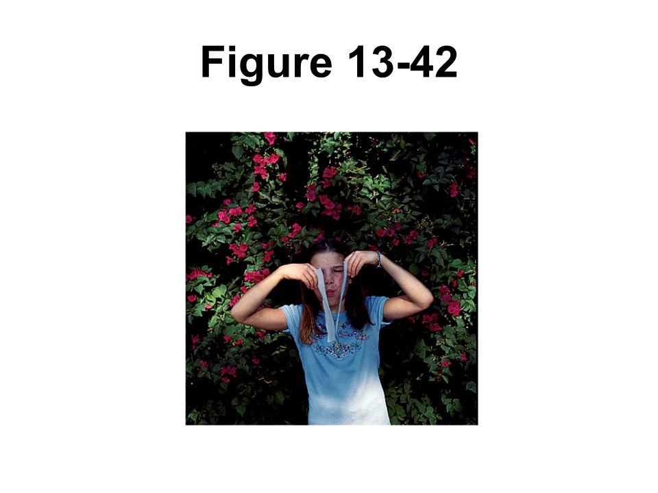 Figure 13-42