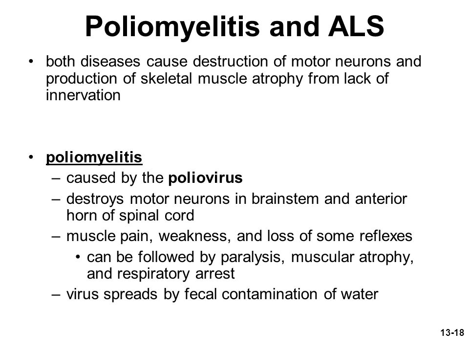 13-18 Poliomyelitis and ALS both diseases cause destruction of motor neurons and production of skeletal muscle atrophy from lack of innervation poliomyelitis –caused by the poliovirus –destroys motor neurons in brainstem and anterior horn of spinal cord –muscle pain, weakness, and loss of some reflexes can be followed by paralysis, muscular atrophy, and respiratory arrest –virus spreads by fecal contamination of water