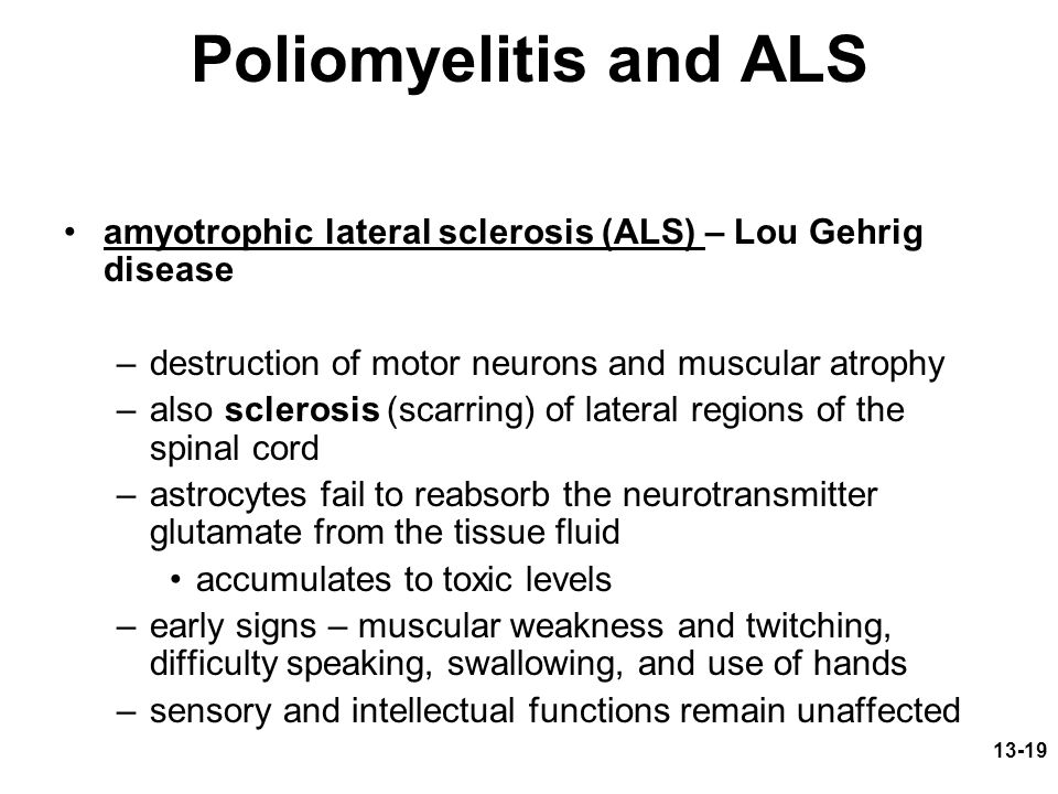 13-19 Poliomyelitis and ALS amyotrophic lateral sclerosis (ALS) – Lou Gehrig disease –destruction of motor neurons and muscular atrophy –also sclerosis (scarring) of lateral regions of the spinal cord –astrocytes fail to reabsorb the neurotransmitter glutamate from the tissue fluid accumulates to toxic levels –early signs – muscular weakness and twitching, difficulty speaking, swallowing, and use of hands –sensory and intellectual functions remain unaffected