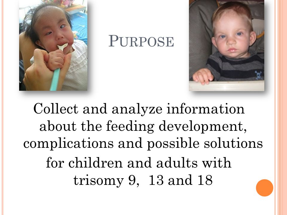 P URPOSE Collect and analyze information about the feeding development, complications and possible solutions for children and adults with trisomy 9, 13 and 18