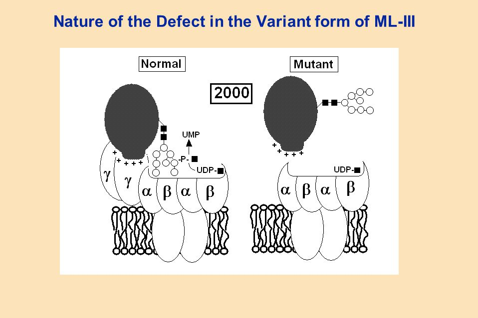 Nature of the Defect in the Variant form of ML-III