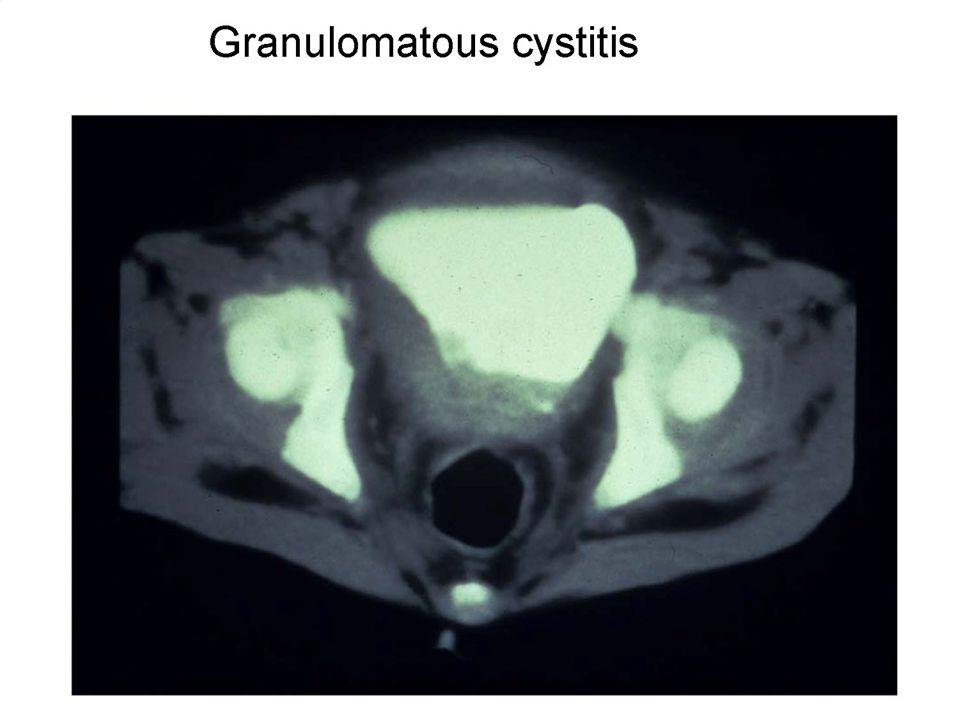 Invasive aspergillosis in a mouse model of chronic granulomatous disease Segal, BH, N Engl J Med. 2009 Apr 30;360(18):1870-84