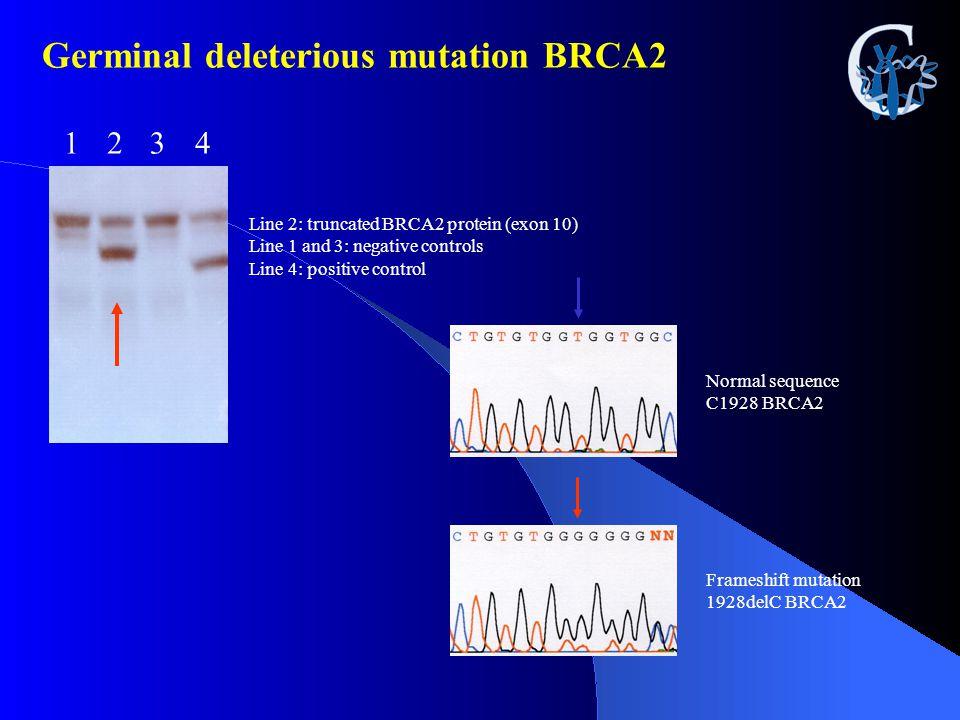 Germinal deleterious mutation BRCA2 1234 Line 2: truncated BRCA2 protein (exon 10) Line 1 and 3: negative controls Line 4: positive control Normal seq