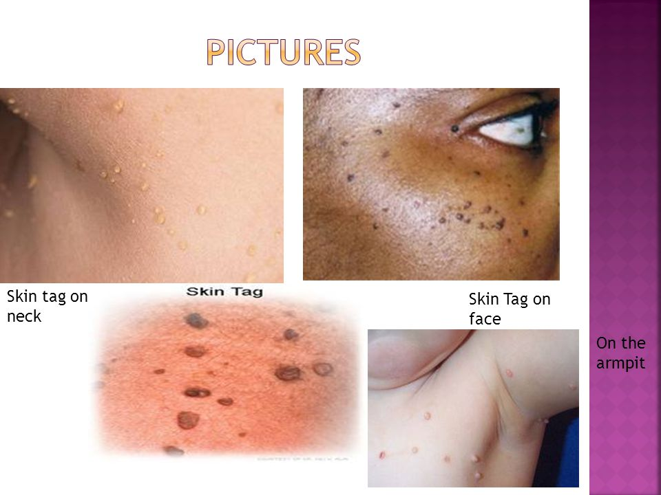 Skin tag on neck Skin Tag on face On the armpit