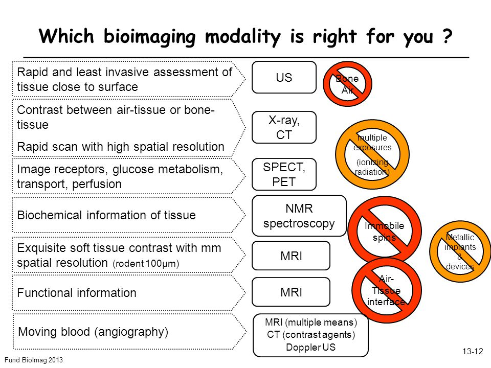 Fund BioImag 2013 13-12 Which bioimaging modality is right for you .