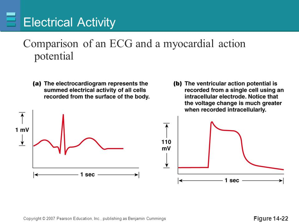 Copyright © 2007 Pearson Education, Inc., publishing as Benjamin Cummings Figure 14-22 Electrical Activity Comparison of an ECG and a myocardial actio
