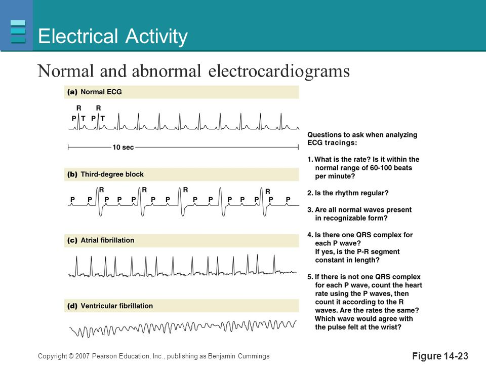 Copyright © 2007 Pearson Education, Inc., publishing as Benjamin Cummings Figure 14-23 Electrical Activity Normal and abnormal electrocardiograms