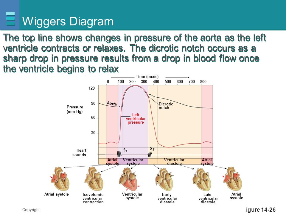 Copyright © 2007 Pearson Education, Inc., publishing as Benjamin Cummings Figure 14-26 Wiggers Diagram Pressure (mm Hg) Heart sounds Dicrotic notch At