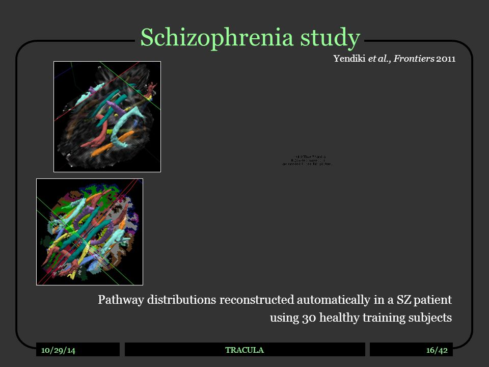 10/29/14TRACULA16/42 Schizophrenia study Pathway distributions reconstructed automatically in a SZ patient using 30 healthy training subjects Yendiki