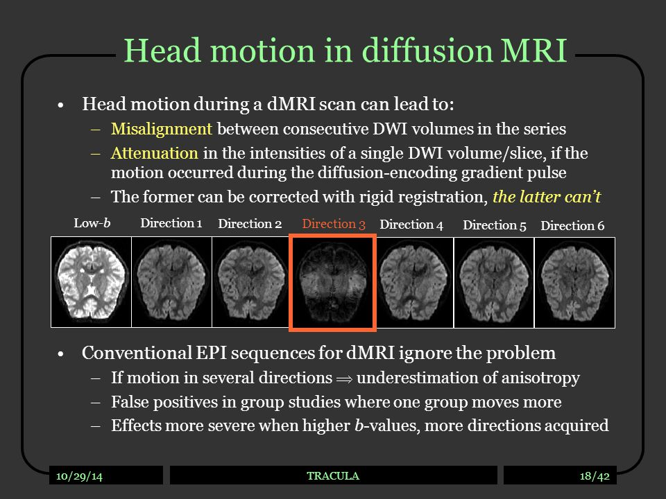 10/29/14TRACULA18/42 Head motion in diffusion MRI Head motion during a dMRI scan can lead to: –Misalignment between consecutive DWI volumes in the ser