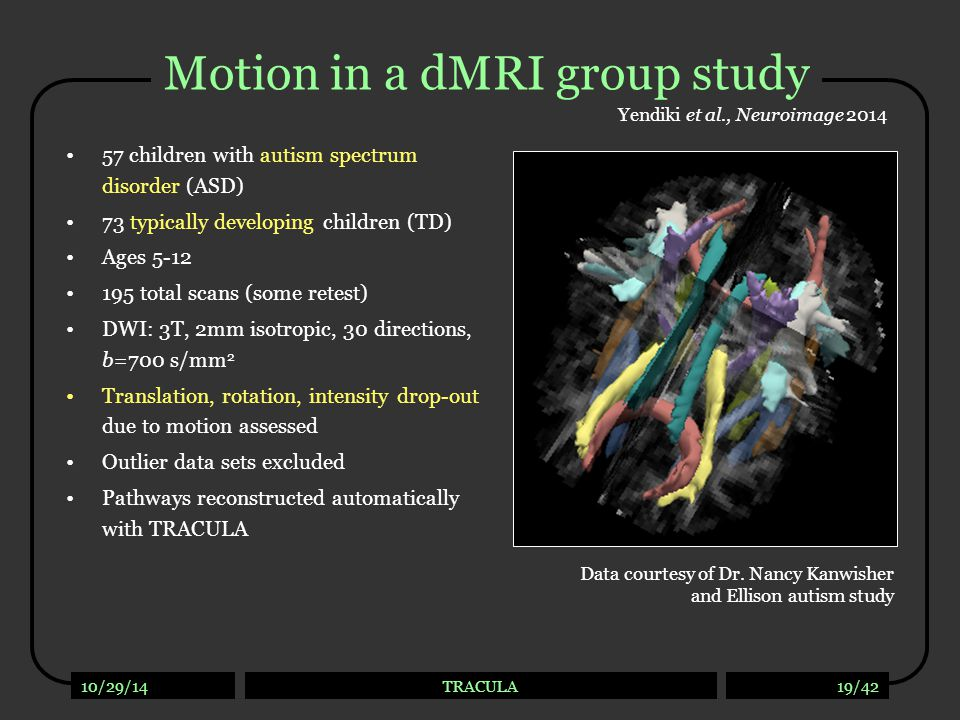 10/29/14TRACULA19/42 Motion in a dMRI group study 57 children with autism spectrum disorder (ASD) 73 typically developing children (TD) Ages 5-12 195