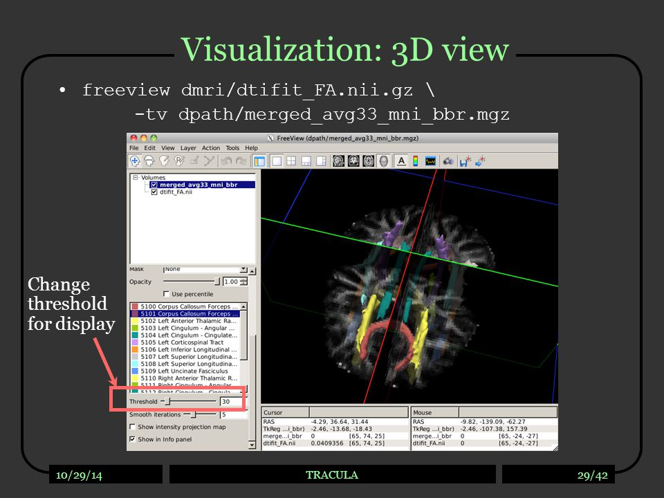 10/29/14TRACULA29/42 Visualization: 3D view freeview dmri/dtifit_FA.nii.gz \ -tv dpath/merged_avg33_mni_bbr.mgz Change threshold for display