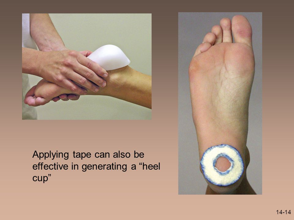"14-14 Applying tape can also be effective in generating a ""heel cup"""