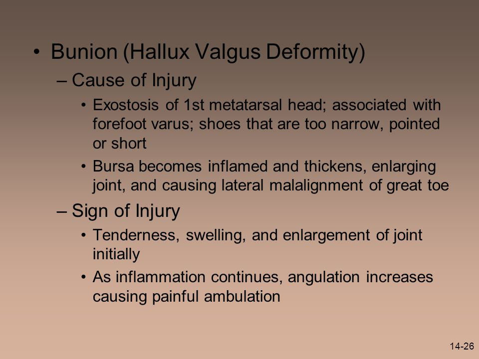 14-26 Bunion (Hallux Valgus Deformity) –Cause of Injury Exostosis of 1st metatarsal head; associated with forefoot varus; shoes that are too narrow, p
