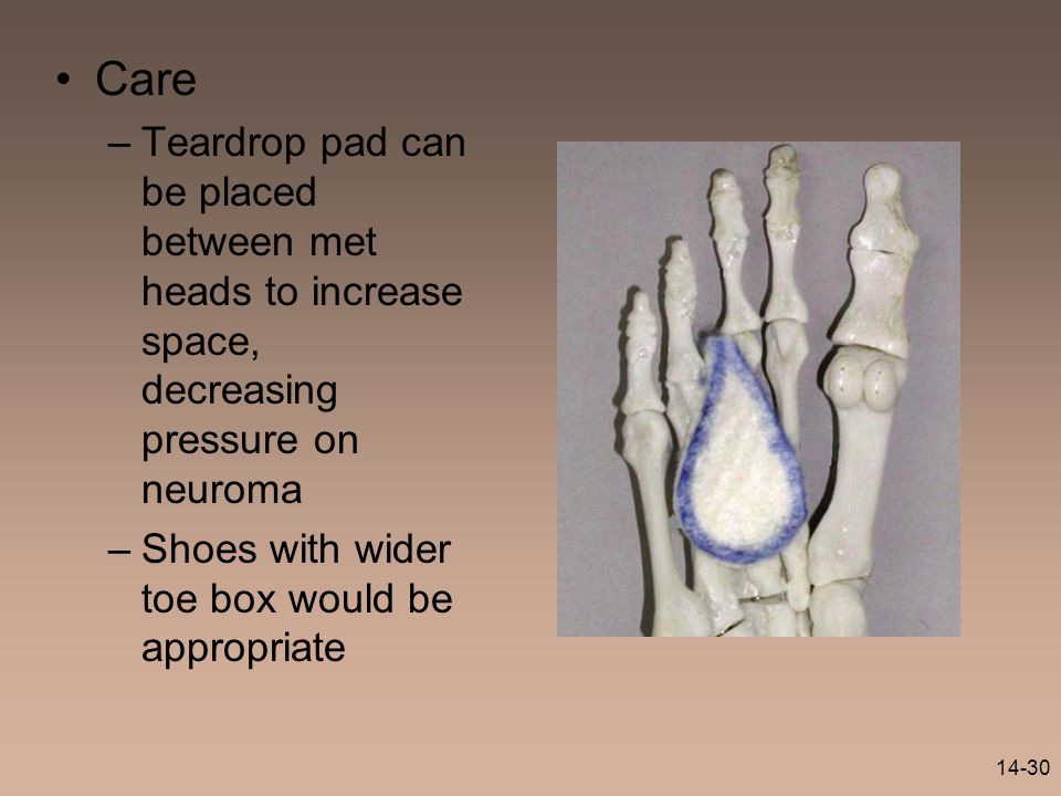 14-30 Care –Teardrop pad can be placed between met heads to increase space, decreasing pressure on neuroma –Shoes with wider toe box would be appropri