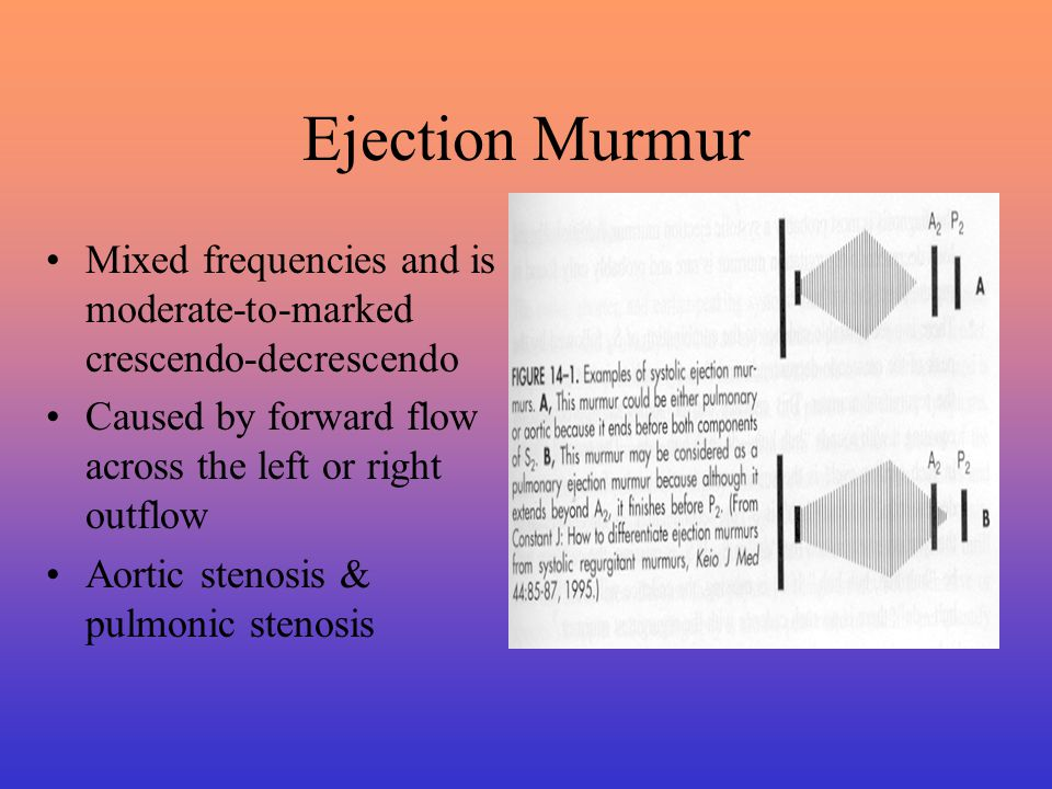 Classification of Ejection Murmurs Early Systolic Ejection Murmur –Commonly heard in a small VSD without pulmonary hypertension, large VSD with pulmonary hypertension, septal perforation resulting from MI, acute severe mitral regurgitation Mid-systolic Ejection Murmur –Long and is loudest in mid-systolic with the sound of S 2 clearly audible & implies significant aortic or pulmonic outflow tract obstruction, TOF, dilatation of he proximal pulmonary artery or ASD
