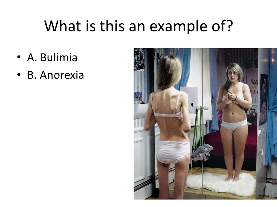 What is this an example of? A. Bulimia B. Anorexia