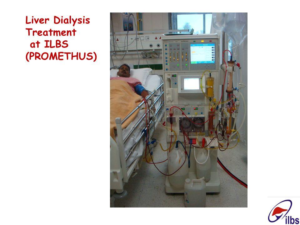 Liver Dialysis Treatment at ILBS (PROMETHUS)