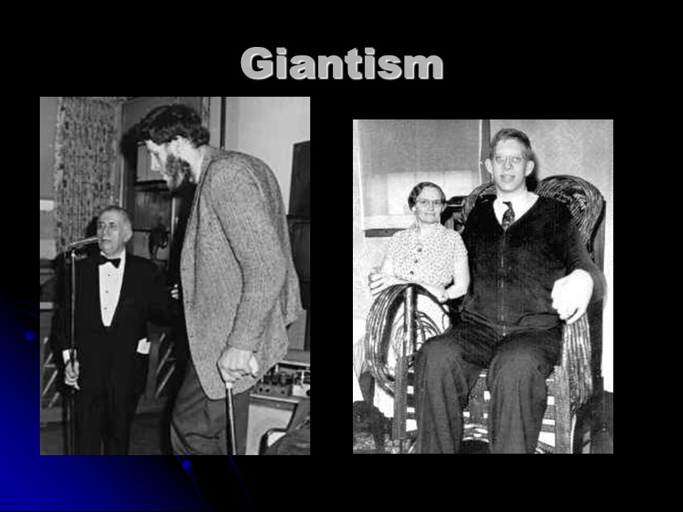 Other Clinical Conditions Gigantism Gigantism Childhood hypersecretion of growth hormone by the pituitary gland causes excessive growth.