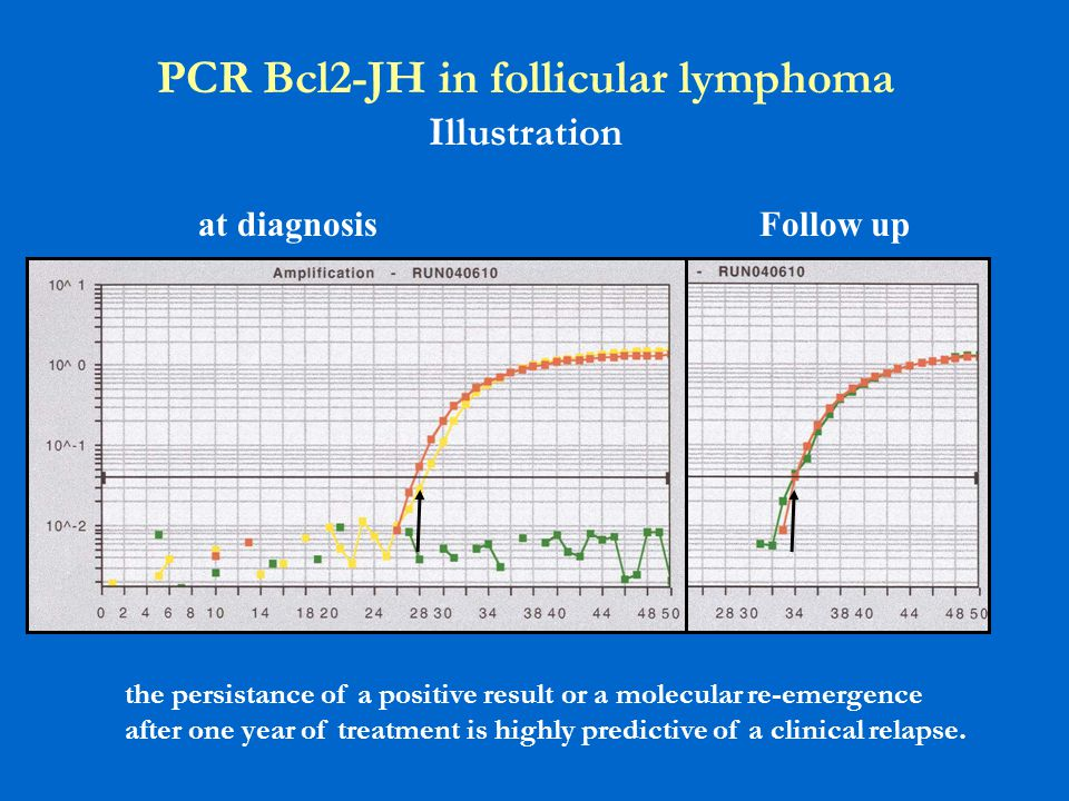 PCR Bcl2-JH in follicular lymphoma Illustration at diagnosisFollow up the persistance of a positive result or a molecular re-emergence after one year