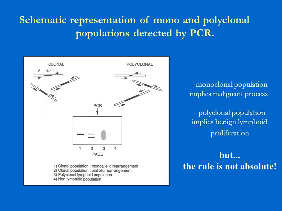 Schematic representation of mono and polyclonal populations detected by PCR. - monoclonal population implies malignant process - polyclonal population