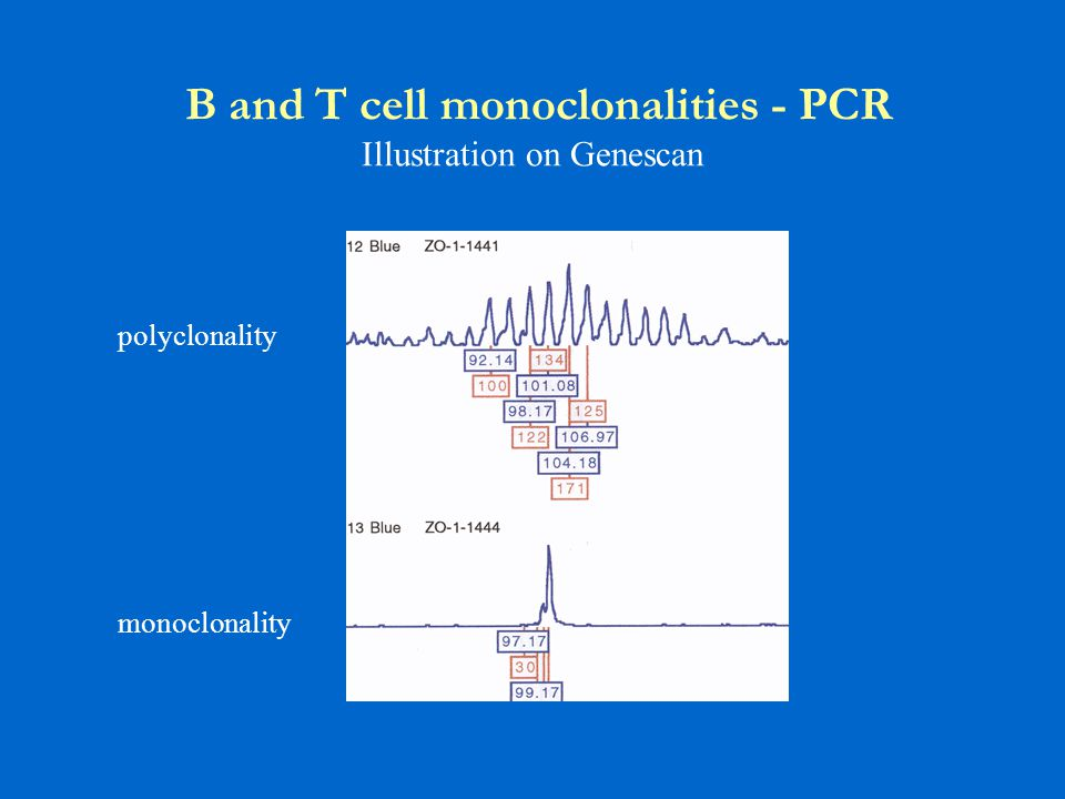 B and T cell monoclonalities - PCR Illustration on Genescan polyclonality monoclonality