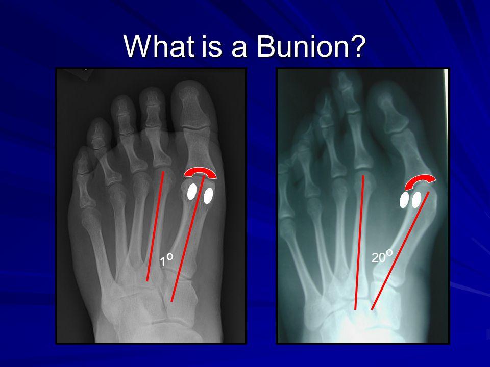 What is a Bunion? 20 o 1o1o