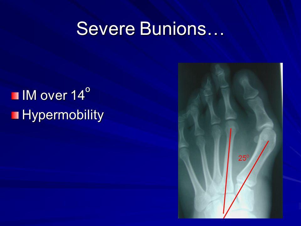 Severe Bunions… IM over 14 o Hypermobility 25 o