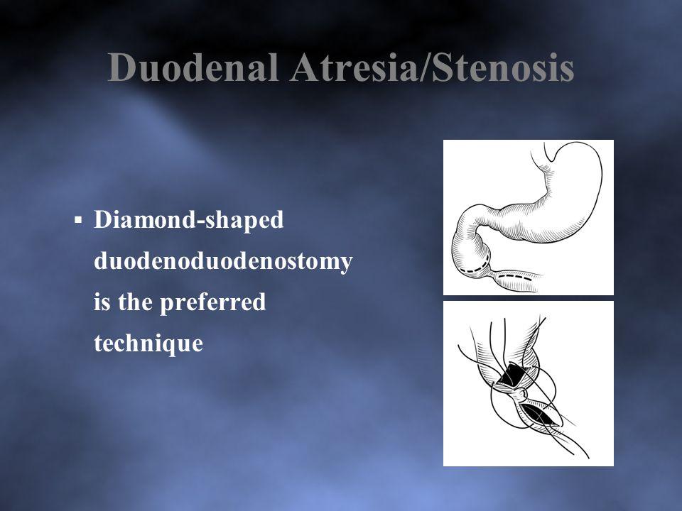 Duodenal Atresia/Stenosis  Diamond-shaped duodenoduodenostomy is the preferred technique