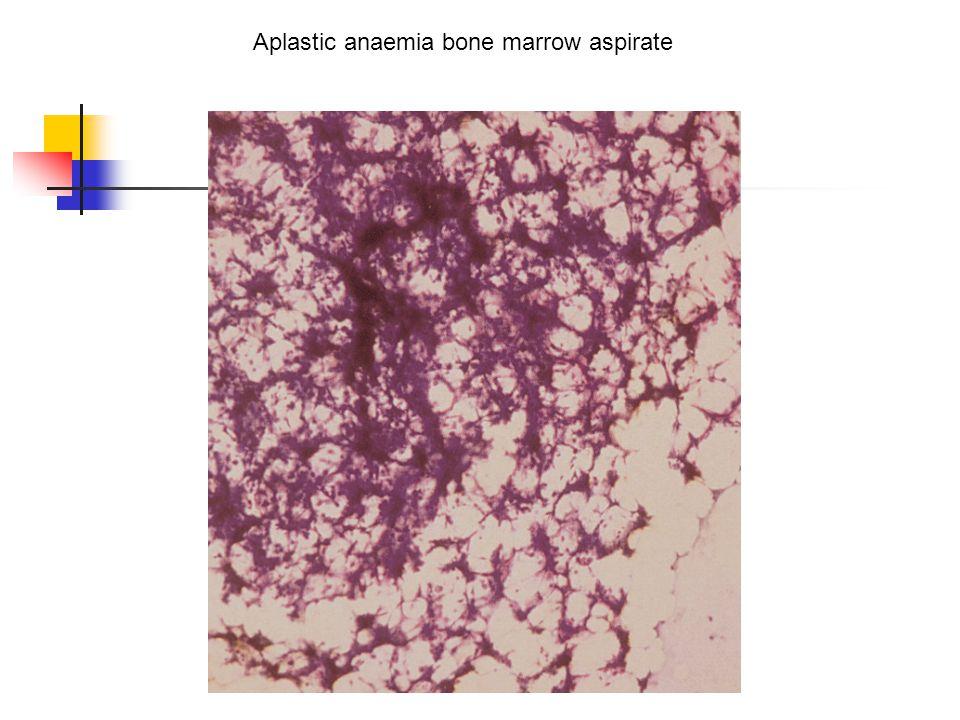 Aplastic anaemia bone marrow aspirate