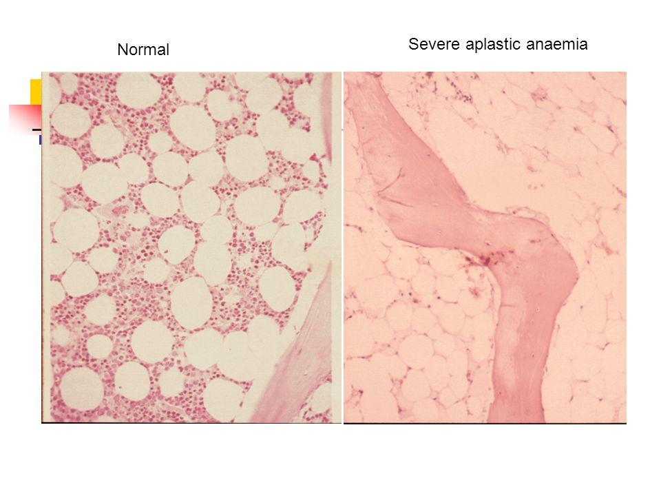 Normal Severe aplastic anaemia