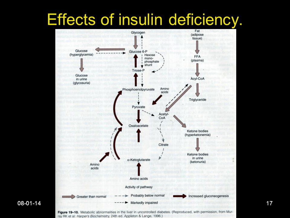 08-01-14Islets of Langerhan17 Effects of insulin deficiency.