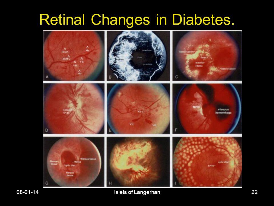 08-01-14Islets of Langerhan22 Retinal Changes in Diabetes.