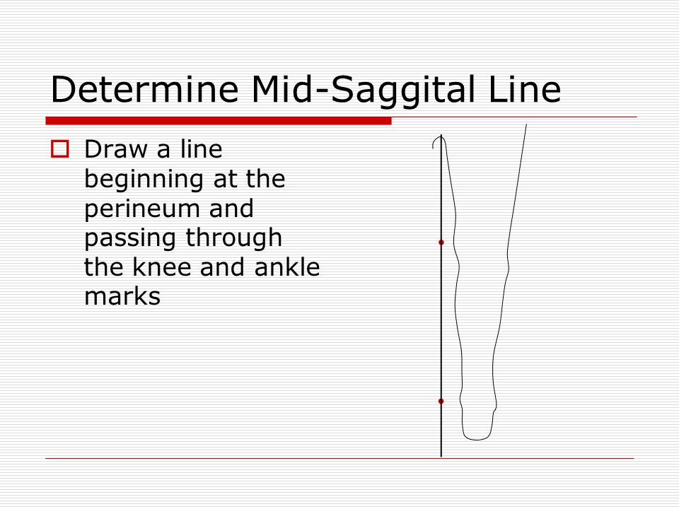 Determine Mid-Saggital Line  Draw a line beginning at the perineum and passing through the knee and ankle marks